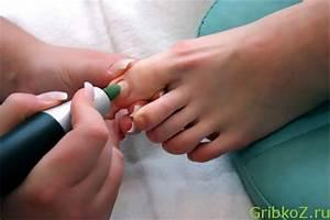 Грибок на ногтях ногах симптомы и лечение
