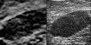An Axillary Lymph Node Showing Malignant Morphology On