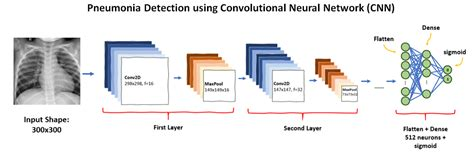 neural convolutional network pneumonia detection chest rays using hospital smart devpost