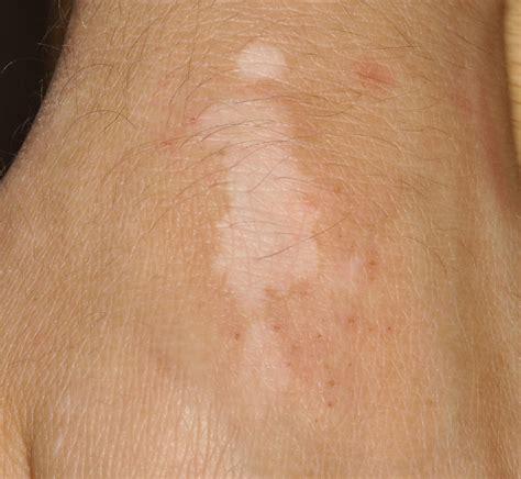 hautarztpraxis dr hempel vitiligo weissfleckenkrankheit