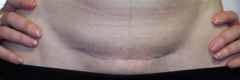 c section scar four months postpartum