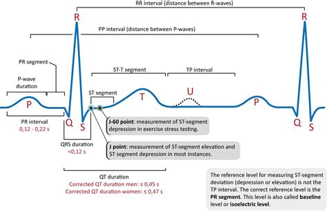 qrs duration normal range 28 images hemodynamic monitoring ppt cardiac arrhythmia ppt unc
