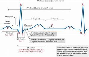 Ecg Interpretation  Characteristics Of The Normal Ecg  P