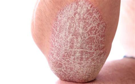 psoriasis ursachen fuer schuppenflechte und