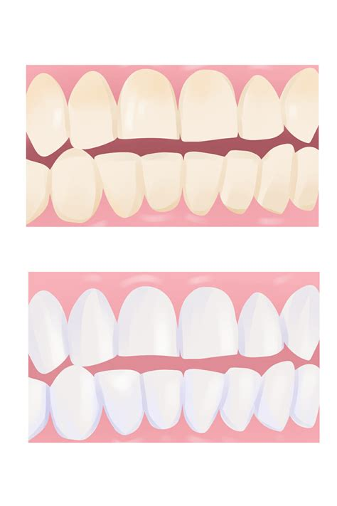 do teeth whitening actually work nicholas s st george dds