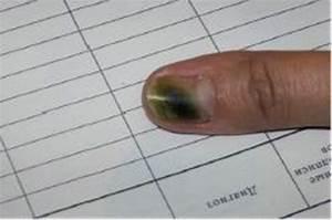 Грибок ногтей лечение лазером стоимость