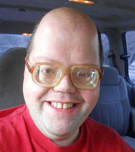 foreheadhead shape  real life pic
