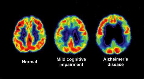 eli lillys experimental alzheimers drug fails  large