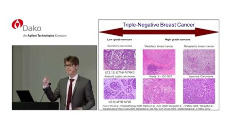 triple negative breast cancers  youve