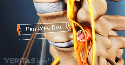 Insights And Advice About Herniated Discs. Asterisk Predictive Dialer Kia South Florida. Computer Systems Analyst Training. Mico University College Mpg For Dodge Charger. Beverly Hills Traffic Ticket. Health Springs Medicare La Semana 70 De Daniel. Heating And Cooling Duluth Mn. How To Adopt A Child In Georgia. Trying To Lose 10 Pounds Comcast Dish Network