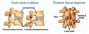 Lumbar Facet Pain Diagram