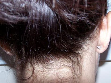 what color are nits when they are dead what do lice eggs look like on hair the