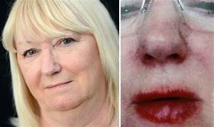 Gran left 'looking like a monster' after allergic reaction ...