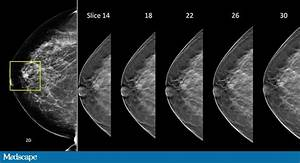 Tomosynthesis: A New Era in Breast Imaging