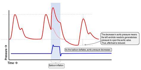benefits   iabp assisted decrease  aortic pressure