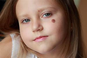 Birthmarks  What Causes Them  Orogold Reviews