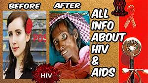 Hiv Aids - What Is Hiv  U0026 Aids