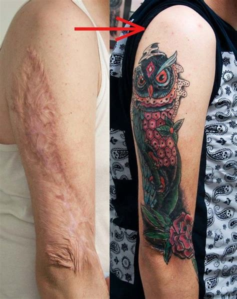 cover   scar   interesting    tattoo