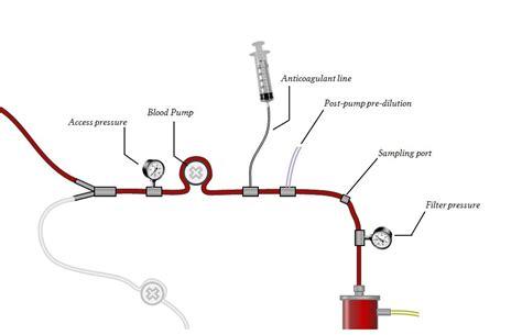 anatomy   extracorporeal dialysis circuit deranged