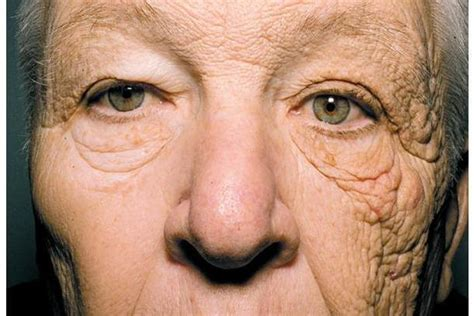 This photo shows what 28 years of sun damage does to your