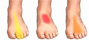 What Causes Of Foot Pain Symptoms