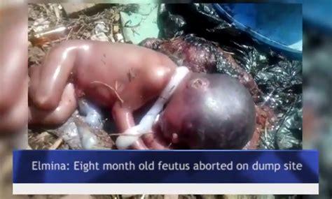 Unborn Child Left In Dump Site After Abortion