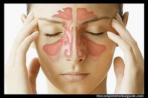 9 Home Remedies To Get Rid Of A Sinus Infection  Plus Tips