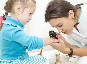 Мази лечение при псориазе дерматозе
