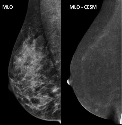 Ecr 2018 C 0115 Contrast Enhanced Spectral Mammography