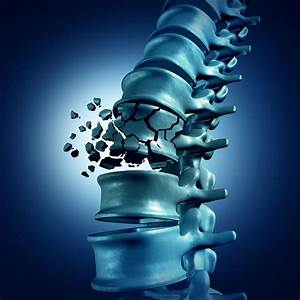 Burst Fractures: Defined and Diagnosed