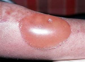 second degree burn symptoms