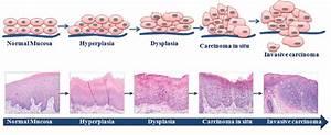 Stages Of Oral Cancer Progression