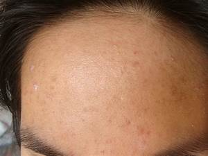 The gallery for --> Subclinical Acne On Forehead