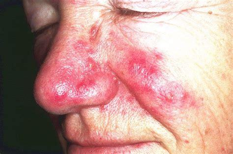 rinofima  es causa sintomas  mucho mas de esta