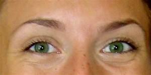Что помогает избавиться от морщин под глазами