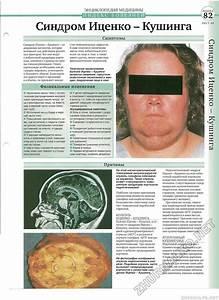 Причины высокого давления у человека симптомы лечение