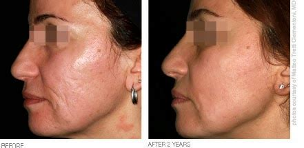 Lumenis Ultrapulse® Fractional Co2 Laser Resurfacing In Penang. Loan For Home Improvement No Equity. Why Is Type 2 Diabetes More Common. Student Newsletter Template Find The Domain. Project Management Tools Car Collision Center. Divorce Lawyers In Arizona Stock Photo Hands. Attorney For Malpractice Lawsuit. Car Insurance For Rentals It Training Classes. Poster Printers For Schools Picture Of Life