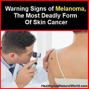 Warning Signs of Melanoma, The Most Deadly Form Of Skin Cancer
