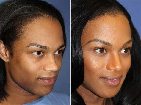 forehead brow lift