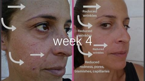 LED Light Therapy Face Mask Before and After Results