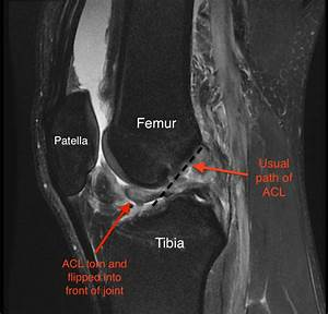 Torn Acl - Symptoms And Diagnosis