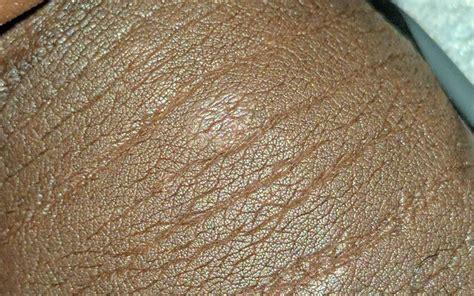 Dry Flaky Penile Skin Diydryco