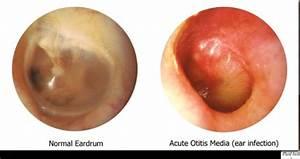 inner ear pain remedy