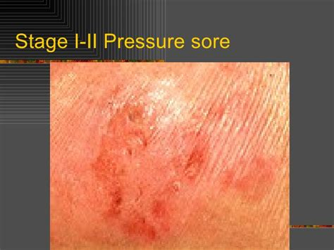 bed sores stages stage two pressure ulcer pictures to pin on