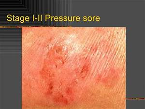 pressure sores With bed sores stage 1