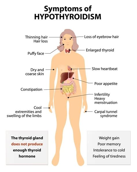 Hyperthyroidism Diagnosis. Loyola University School Of Nursing. Medic Alert Information Bank Account Nickname. Suny Electrical Engineering Best Tech School. Indian Rocks Heating And Cooling. Renters Insurance Massachusetts. History Doctoral Programs Facetime Group Chat. The Work Number Phone Number For Verification. Loans For Small Business With Bad Credit
