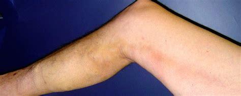 phlebitis after iv