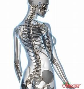 Лечение шейного остеохондроза у женщин препараты