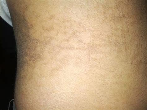 Download Itchy Dark Patch Of Skin Moreinternet