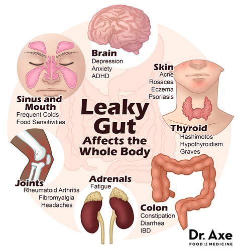 Psoriasis foods that heal